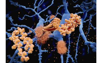 3 Drug-free Ways to Keep Amyloid Out of Your Brain